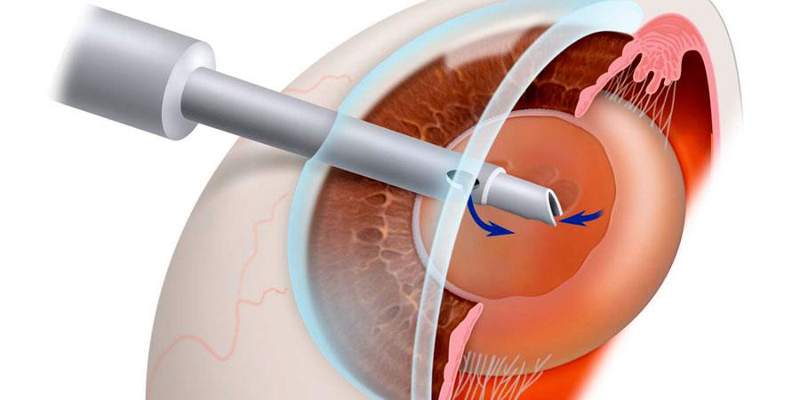 Cirugía de la Catarata mediante Facoemulsificación