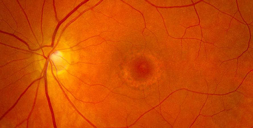 La maculopatía por HidroxiCloroquina (HCQ) es uno de los efectos oftalmologicos colaterales